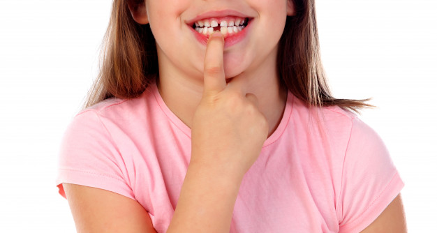 friendly-gril-showing-her-broken-teeth_58409-4425